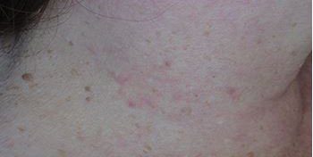 skin tag after advanced electrolysis.JPG